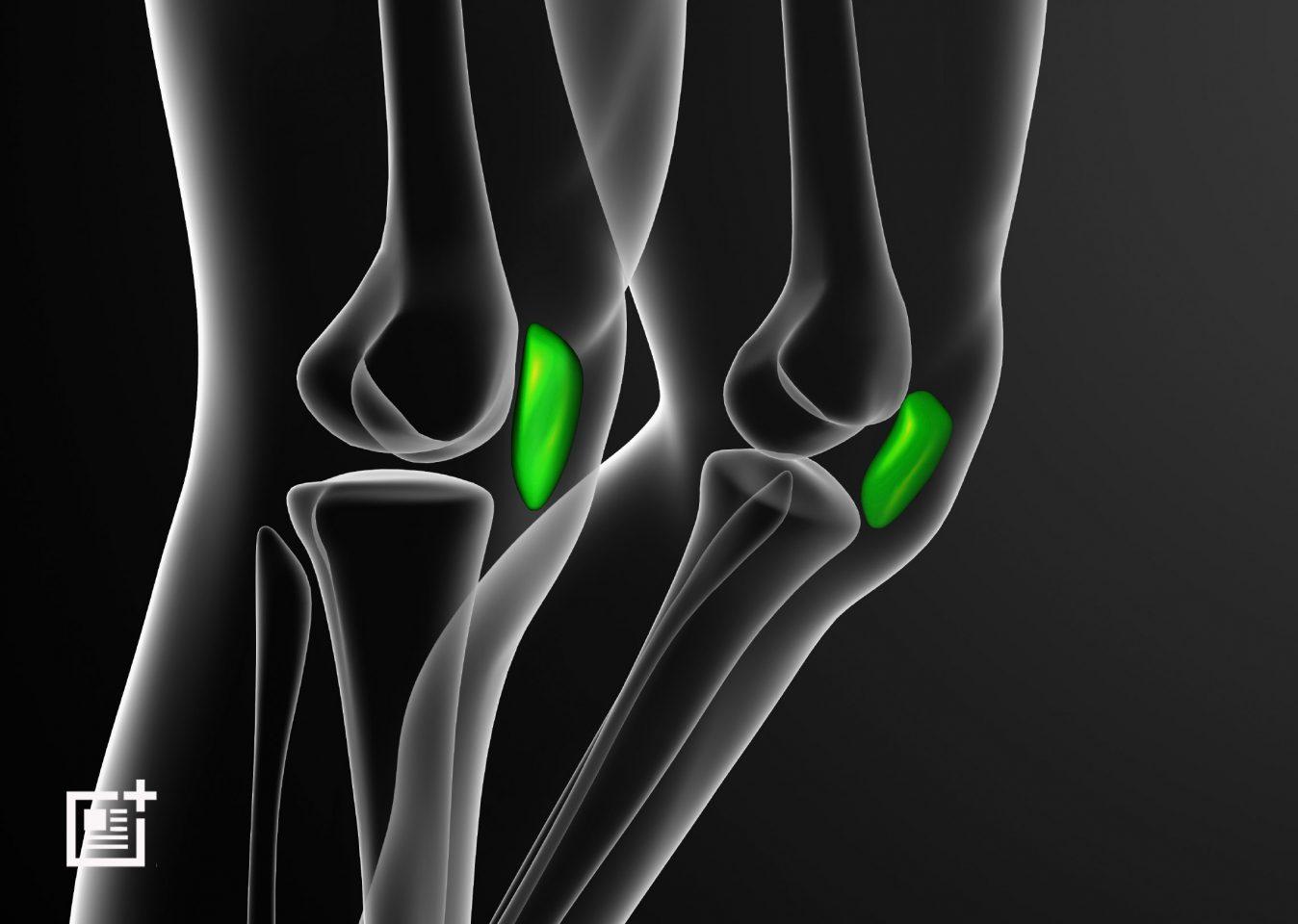 Stem Cells Trials For Knee Injuries Get Underway