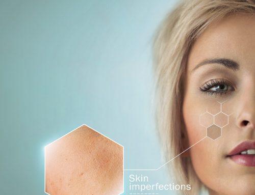 Acne Treatment: Hormonal Therapies And Antibiotics