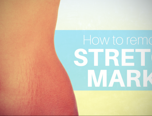 Stretch Mark Removal: Home Remedies And Treatments